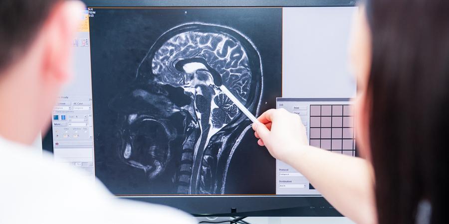 brain xray